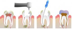 endodoncia dentista en alcala de henares implantes