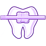 Dentista Alcala de Henares. Ortodoncia. Invisalign
