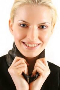 Ortodoncia con brackets de cerámica