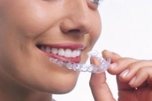 Ortodoncia Invisible. Invisalign. Transparente. Clinica dental en Alcalá de Henares.