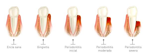 periodontitis higiene bucal dentista en alcalá de henares