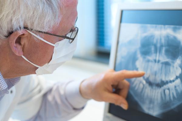 implante dental  dentiasta en alcalá de henares. implantes de titanio