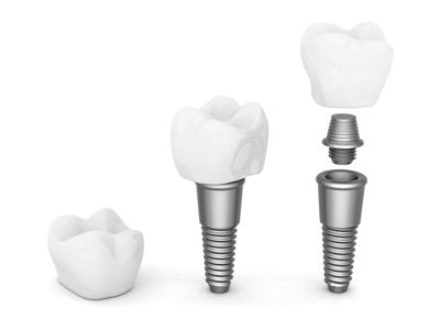 implante dental de titanio implante más corona