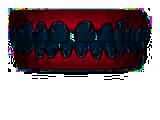 invisalign dientes separado