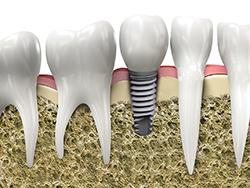 sistema de implantes dentales BTI clinica dental en alcala de henares