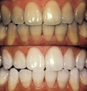 Blanqueamiento dental, dentista en Alcalá de Henares