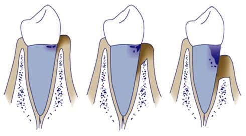 fases de la enfermedad periodontal, periodontitis o piorrea