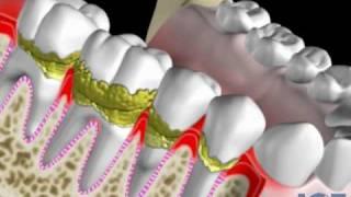Enfermedad periodontal, periodontitis o piorrea.  Periodoncia.