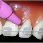 cepillo interdental, cepillo interproximal, hilo dental