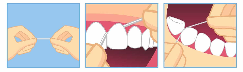 hilo dental seda dental ortodoncia